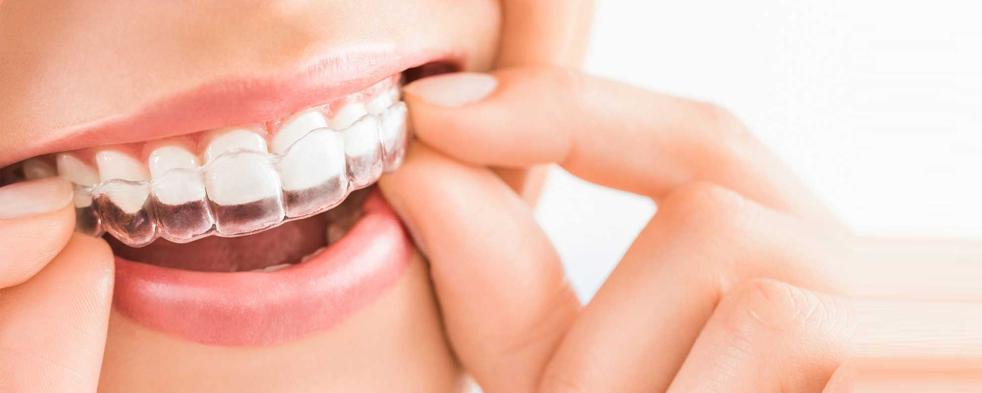 What is the Importance of Orthodontics Looks?